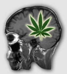 marijuana- cannabis- brain